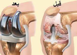 آسیب دیدگی مفصل زانو و درمان آن با جراحی و تعویض مفصل زانو